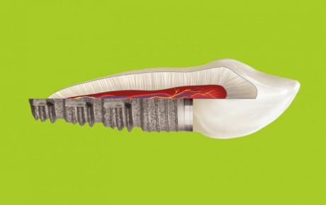 zcor-implant-00